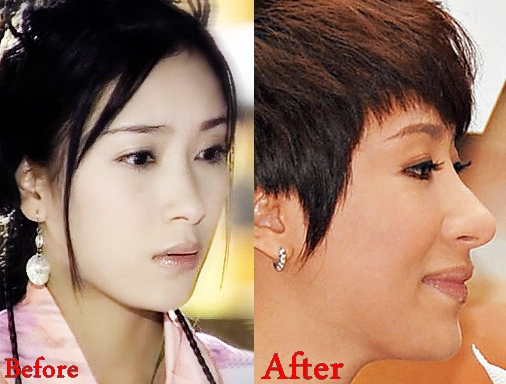 tavia-yeung-plastic-surgery-rumors-before-and-after-pictures