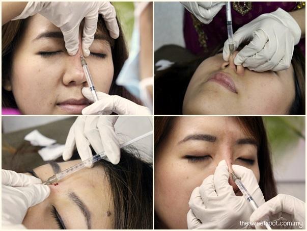 nose-filler injection