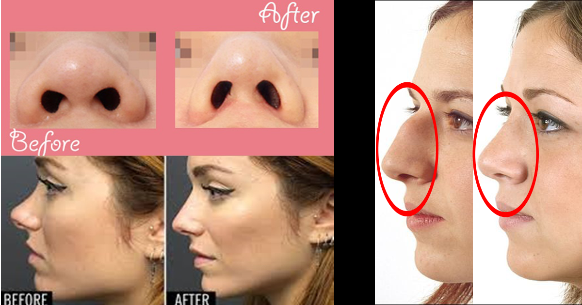 nose-reshaping