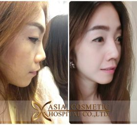 Rhinoplasty cost in Singapore