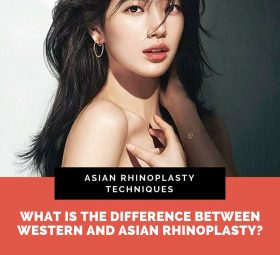 Techniques of Asian Rhinoplasty