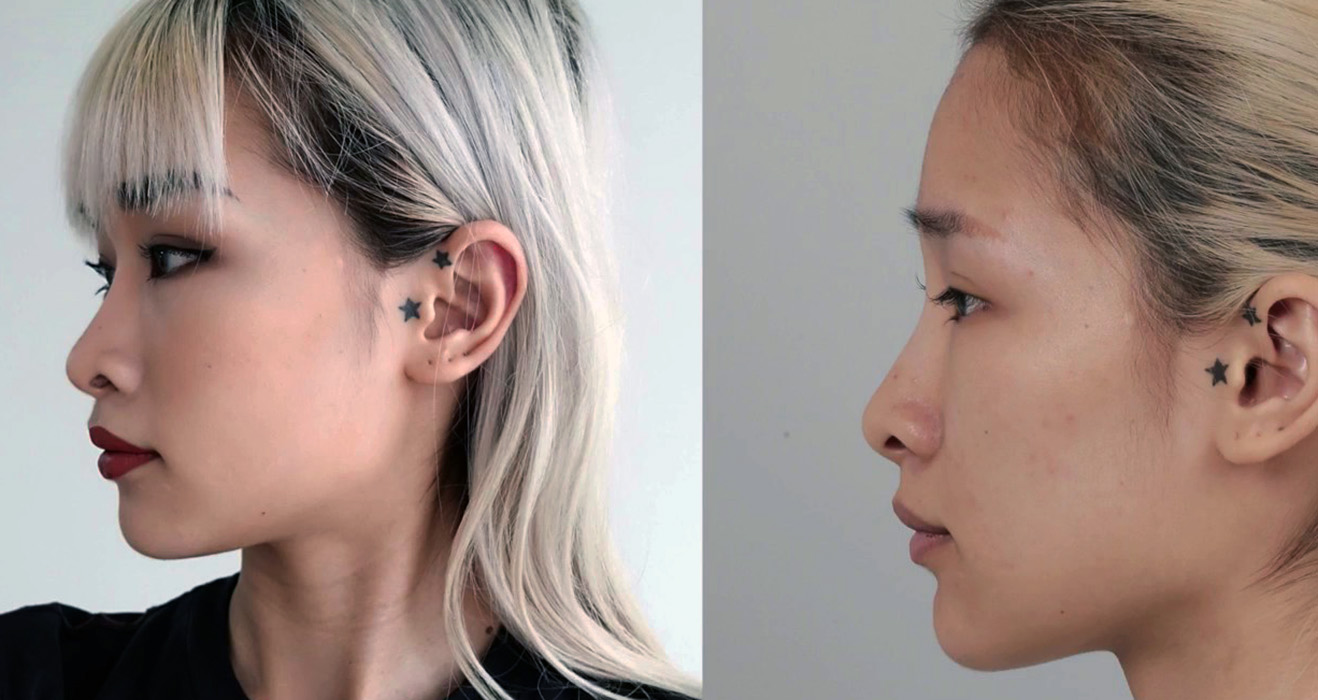before after photo of an asian rhinoplasty