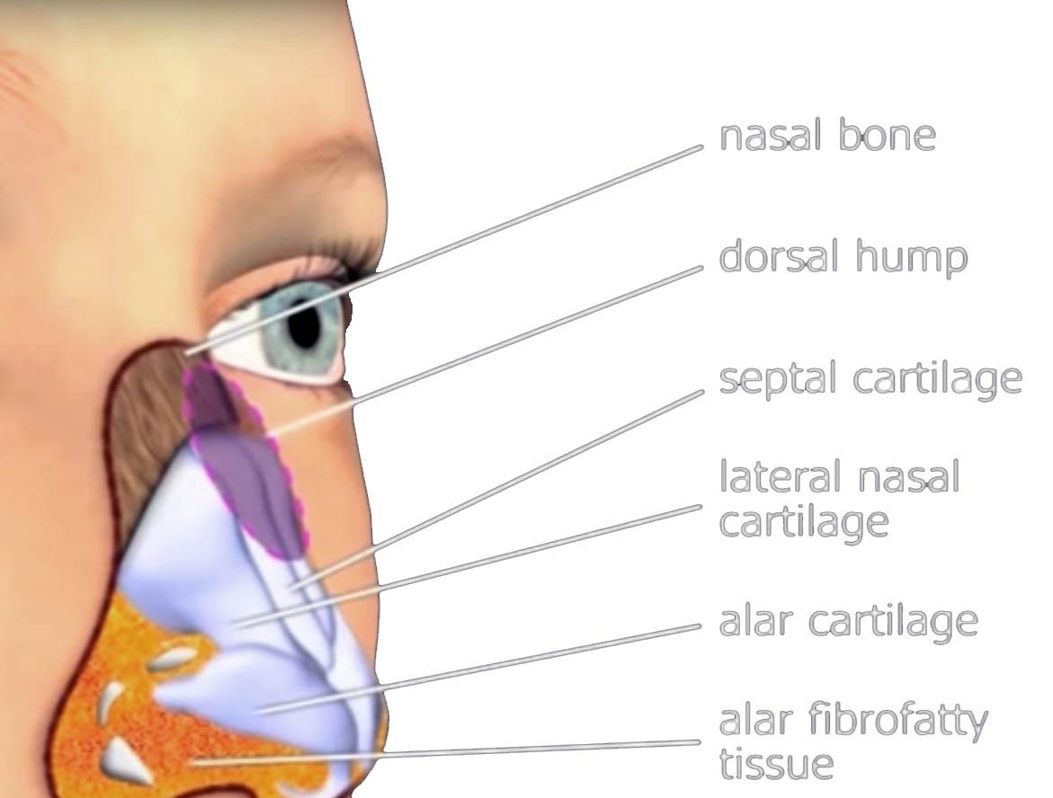 closed rhinoplasty