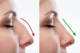 What to Know Before Undergoing Rhinoplasty