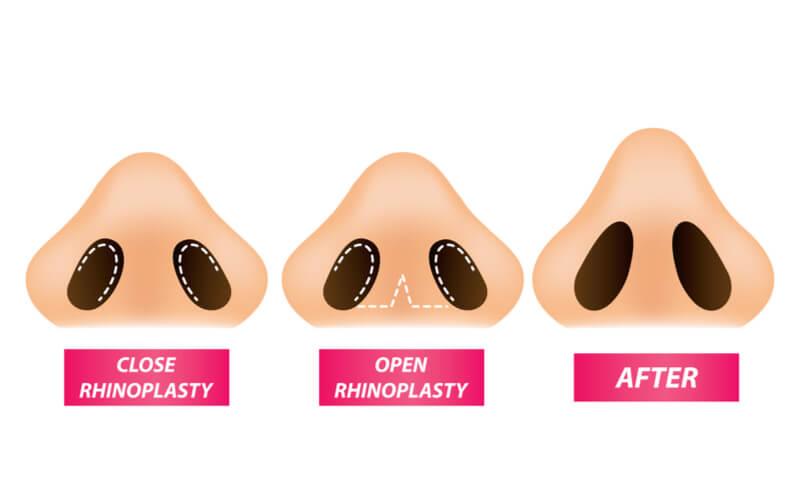 process of rhinoplasty